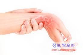 손목 건초염 뼈 이상을 보여주는 사진