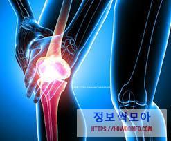 무릎 연골 통증 호소하는 그래픽 사진