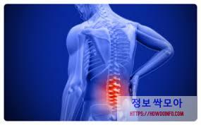 허리 통증 그래픽 사진
