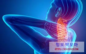 목 근육 통증 그래픽