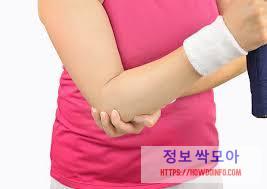 여자 팔꿈치 통증 호소