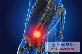 허리 통증 엑스레이 이미지 사진