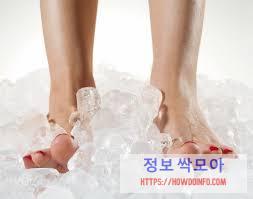 족저근막염 원인 예방 얼음 찜질
