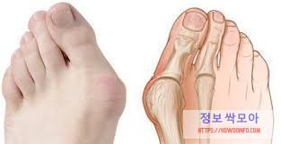 무지외반증 통증 뼈 사진