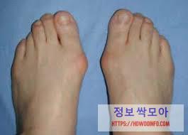 가운데 발가락 통증 무지외반