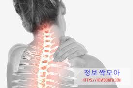 어깨 통증 치료 을 호소하는 여성의 척추 뼈 사진